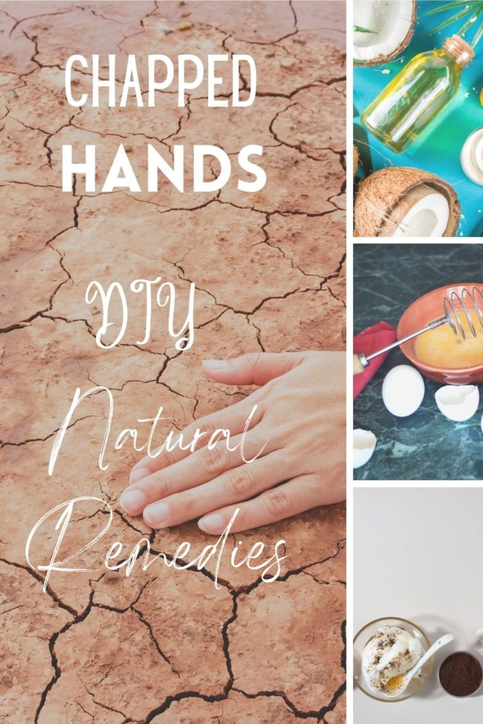 chapped hands natural remedies